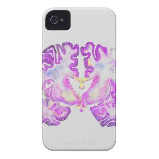 Brain Case-Mate iPhone 4 Case