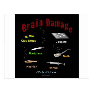 Brain Damage Black Postcard