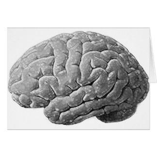 Brain Gifts Greeting Card