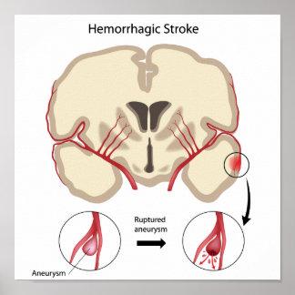 Brain hemorrhagic stroke Poster