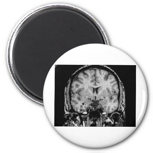 Brain MRI, coronal slice 2 Inch Round Magnet