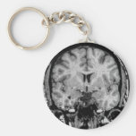 Brain MRI, coronal slice Basic Round Button Keychain