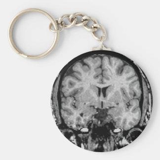 Brain MRI, coronal slice Keychain