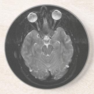 Brain Scan Coaster