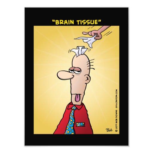 """Brain Tissue"" Photographic Print"