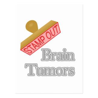 Brain Tumors Postcard