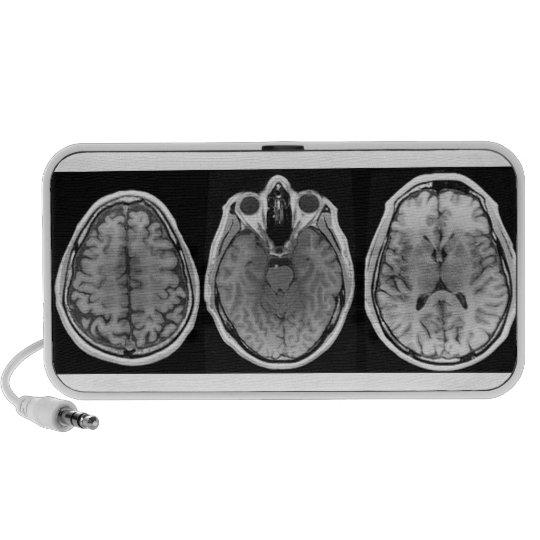 Brainophonic Portable Speaker