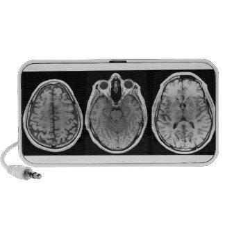 Brainophonic Portable Speakers