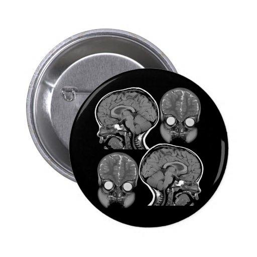 BRAINS! (MRI) 2 INCH ROUND BUTTON