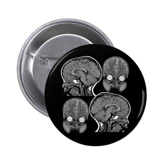 BRAINS! (MRI) PINBACK BUTTON