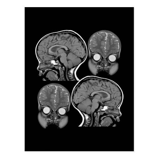 BRAINS! (MRI) POSTCARD