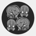 BRAINS! (MRI) ROUND STICKERS