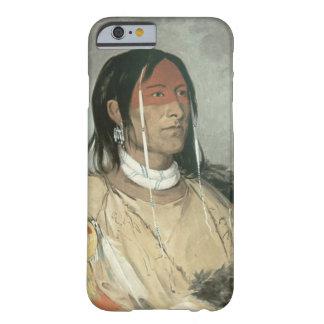 Brazo quebrado, 1831 (aceite en lona) funda para iPhone 6 barely there