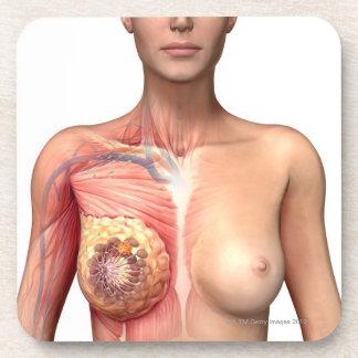 Breast cancer drink coaster