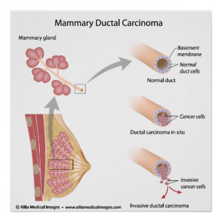 Breast cancer ductal carcinoma , labeled diagram. poster