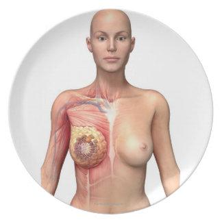 Breast cancer melamine plate
