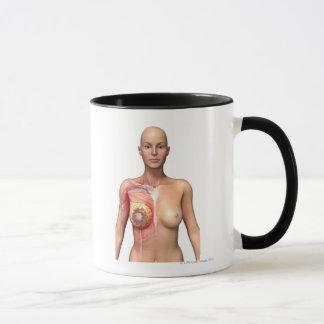 Breast cancer mug