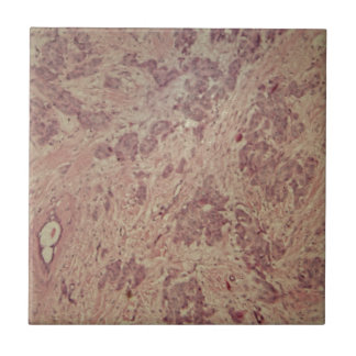 Breast cancer under the microscope ceramic tile