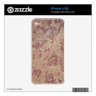 Breast cancer under the microscope decal for the iPhone 4S