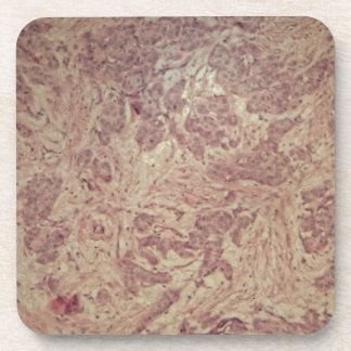 Breast cancer under the microscope drink coaster