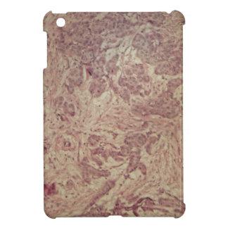 Breast cancer under the microscope iPad mini case