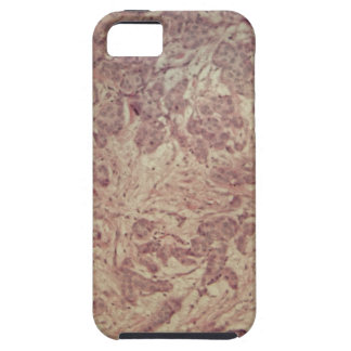 Breast cancer under the microscope iPhone SE/5/5s case