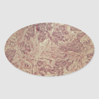 Breast cancer under the microscope oval sticker