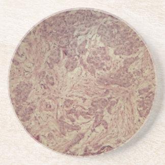 Breast cancer under the microscope sandstone coaster