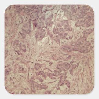 Breast cancer under the microscope square sticker