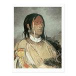 Broken Arm, 1831 (oil on canvas) Postcards