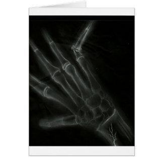 Broken Hand X-ray Card