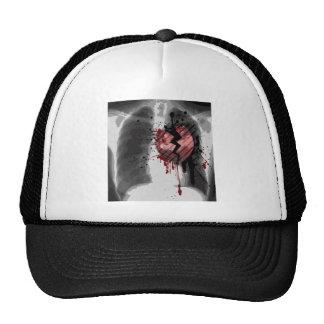 Broken Hearted X-ray Trucker Hat