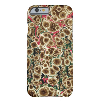 Brown, rosa y diseño Marbleized verde Funda Para iPhone 6 Barely There