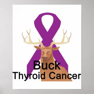 Buck Thyroid-Cancer Poster