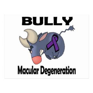 BULLy Macular Degeneration Postcard