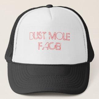 BUST MOLE FACE! TRUCKER HAT