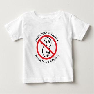 Camiseta severa del bebé de la alergia del