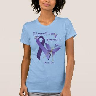 Camisetas del día de la conciencia del playeras
