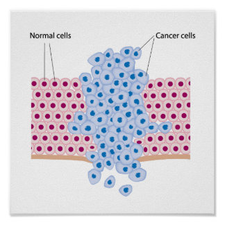 Cancer cells in a growing tumor poster