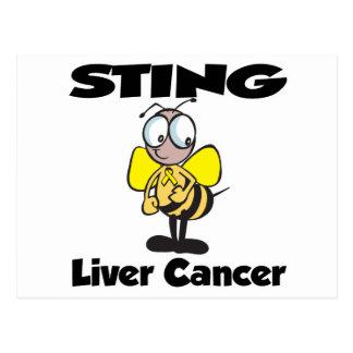 Cáncer de hígado de STING Postales