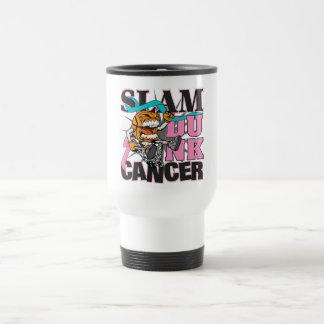Cáncer de pecho hereditario - cáncer de la clavada taza de café