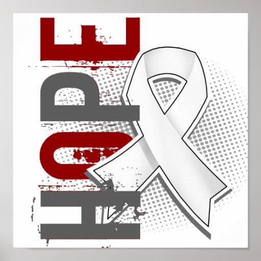 Cáncer de pulmón de la esperanza 2 posters