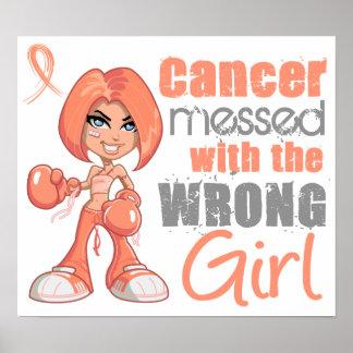 Cáncer endometrial ensuciado con el chica incorrec póster