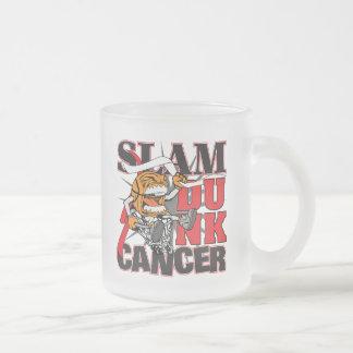 Cáncer oral - cáncer de la clavada taza de café