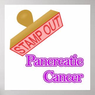 Cáncer pancreático posters