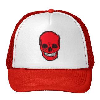 Cap becomes bald trucker hat