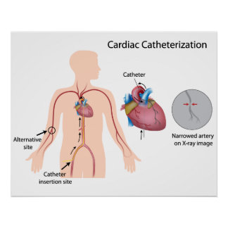 Cardiac catheterization Poster