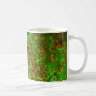 Cardiovascular Calcification Microscopic Close Up Classic White Coffee Mug