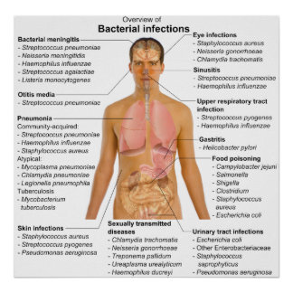 Carta de las infecciones bacterianas principales e poster
