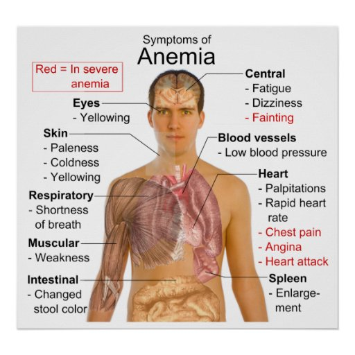 Carta de los síntomas de la anemia de la enfermeda impresiones